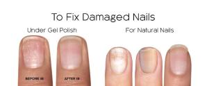fix damaged nails